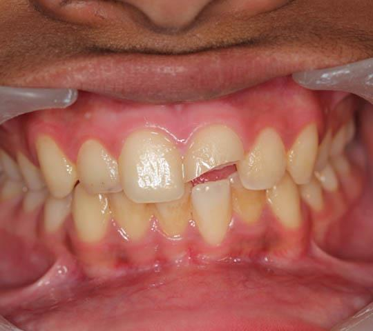 Upper Front Tooth Fractured
