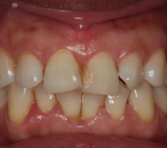 Previously Filled Front teeth