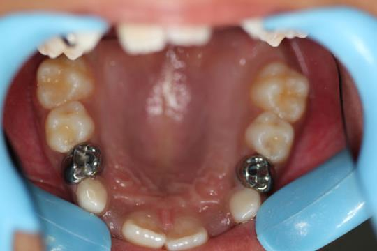 Upper Teeth - After Treatment - chewing surface view