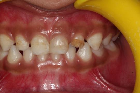 Before Treatment - Filling of Milk Front tooth or teeth