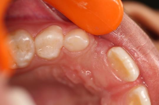 After Treatment - Cavities of teeth