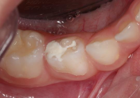 After Treatment - Filling of Permanent teeth in children