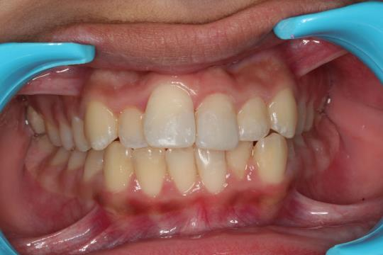 After Treatment - Reconstruction of broken teeth