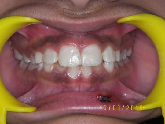 After Treatment - Reattached teeth